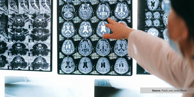 Seperti apa Otak Kita saat Kesepian